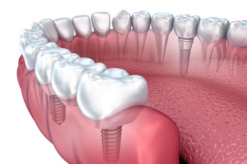 Affordable Dental Implants in India Kerala Low Cost